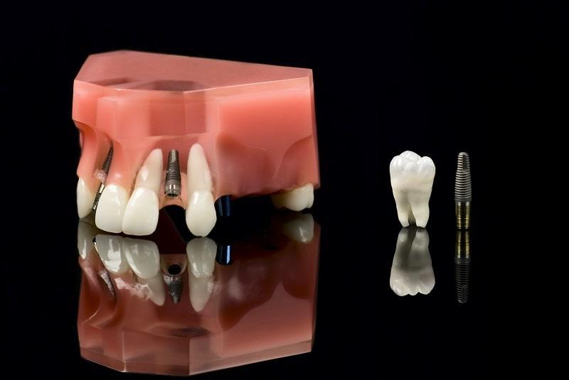 implanty w 1 dzień rzeszów