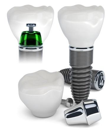 implanty w jeden dzień rzeszów