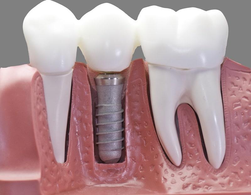 rzeszów implanty zębowe