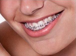 stały aparat ortodontyczny